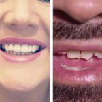 Comment les placages dentaires amovibles Smile Teeth vous donnent un sourire de stars
